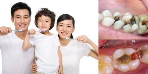 cách chăm sóc răng miệng để phòng ngừa sâu răng