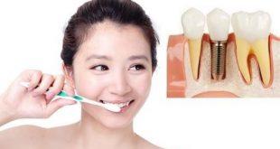 Cấy ghép implant xong có được đánh răng không