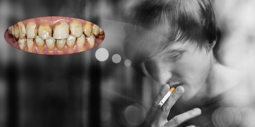 thuốc lá làm răng bị ố vàng