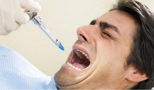 Gây mê trong lúc nhổ răng có được không-2