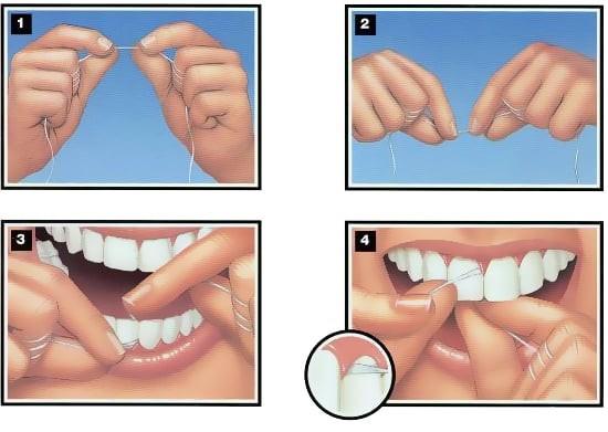 hướng dẫn bảo vệ răng miệng đúng cách