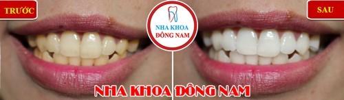 sai lầm khi chăm sóc răng sau khi niềng