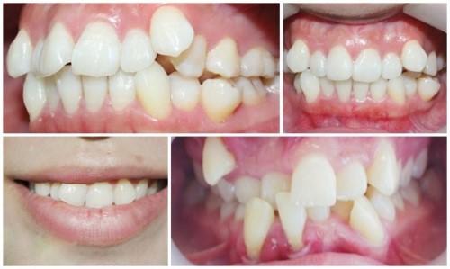 cách chăm sóc răng niềng