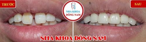 chăm sóc răng sau khi niềng