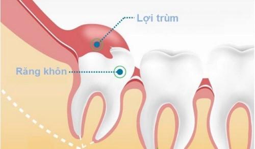 cách chăm sóc răng miệng sau khi nhổ răng khôn