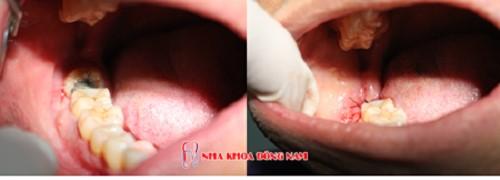 vệ sinh răng miệng sau khi nhổ răng khôn