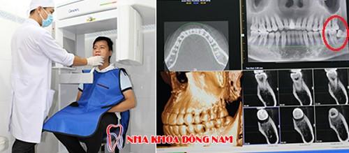 nhổ răng khôn ở đâu tốt nhất tại tphcm