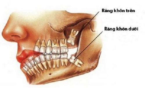 chăm sóc răng miệng sau khi nhổ răng khôn