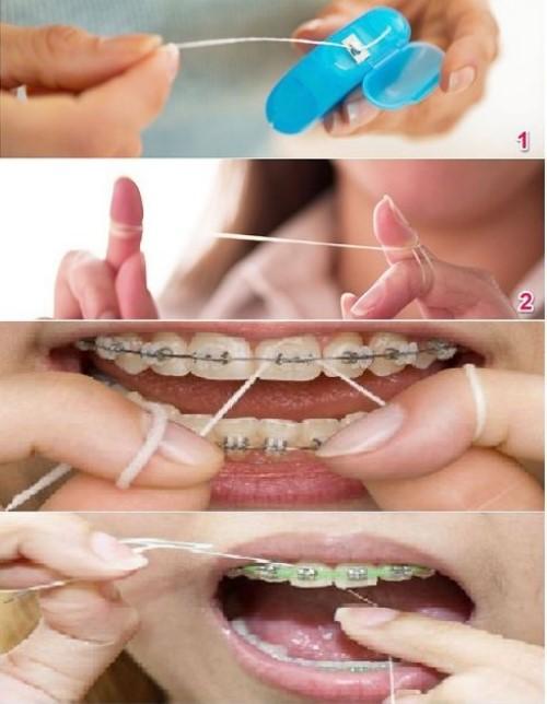 vệ sinh răng sau khi niềng