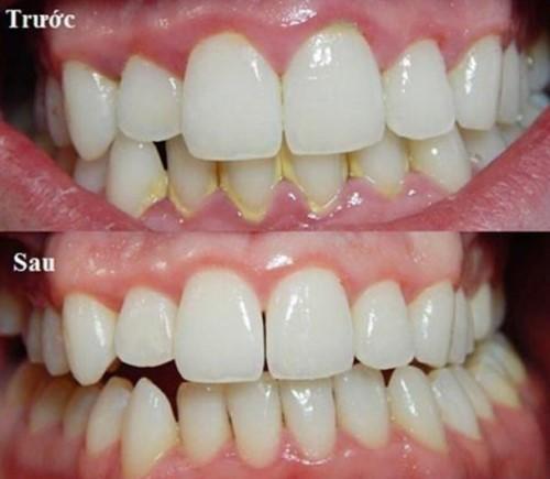 cách chăm sóc răng sau khi cạo vôi răng