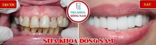 chăm sóc răng trắng sáng