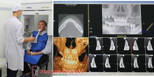 cham soc rang implant sau khi cay ghep