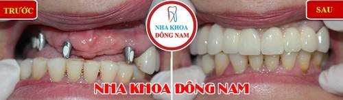 trồng răng impalnt ở đâu uy tín tphcm