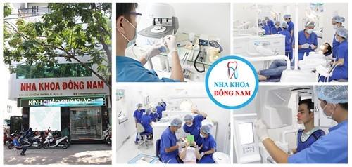 nha khoa trồng răng implant uy tín