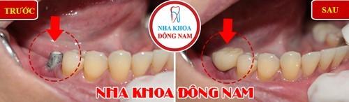 chăm sóc răng giả cố định