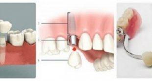 chăm sóc răng giả