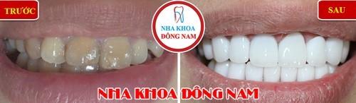 bọc răng sứ ở đâu tại tphcm