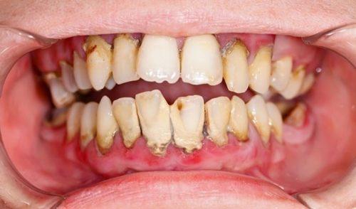 nguyên nhân gây hôi miệng và cách chữa trị