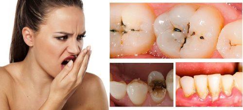 các nguyên nhân chính gây hôi miệng và cách chữa trị