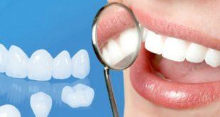 răng bọc sứ là gì? cách chăm sóc răng sau khi bọc sứ