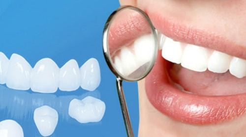 răng bọc sứ là gì