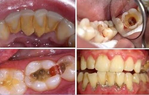 chăm sóc răng miệng định kỳ