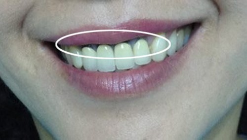 hôi miệng sau khi bọc răng sứ