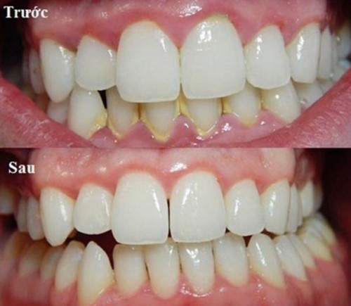 cao vôi răng ngừa hôi miệng