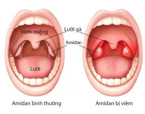 Cách vệ sinh răng miệng sau khi cắt amidan