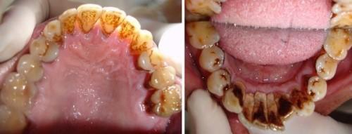 vôi răng gây hôi miệng