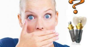 Trồng răng Implant có bị hôi miệng không