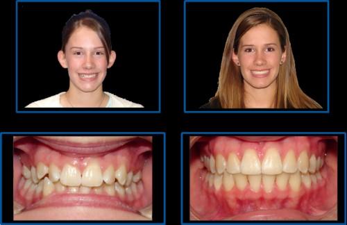 hiệu quả sau khi niềng răng