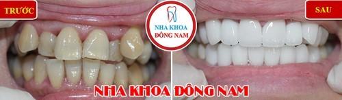 bọc răng sứ cho răng mọc lệch lạc