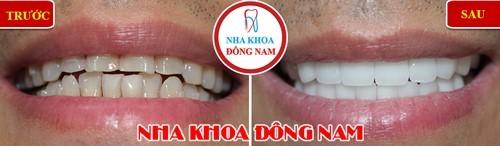 bọc răng sứ cho răng không đều