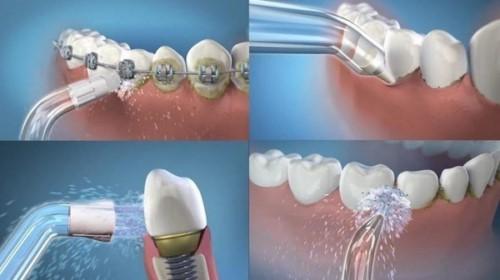 vệ sinh răng miệng sau khi trồng răng implant