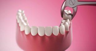 Có nên đánh răng sau khi nhổ răng không