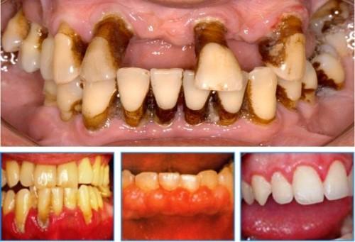 hút thuốc lá gây hại cho răng miệng