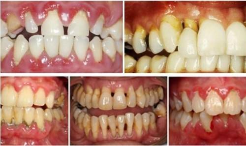 hôi miệng sau khi trồng răng implant