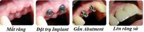 quy trình cấy răng implant