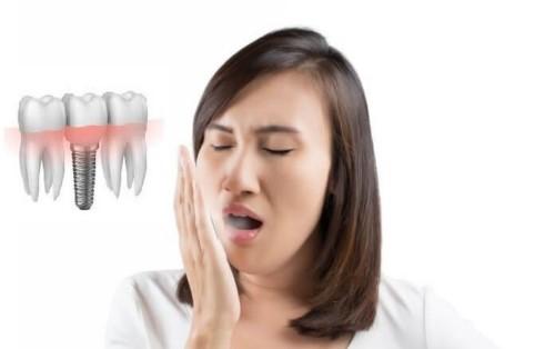 Sự thật về hôi miệng sau khi trồng răng implant