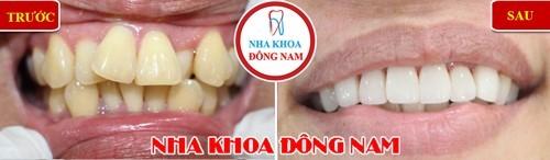 bọc sứ cho răng lộn xộn
