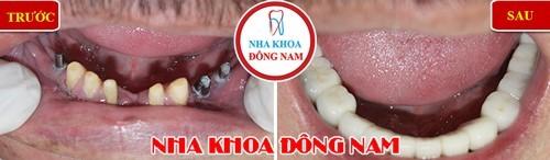 Trồng 3 răng Implant và khôi phục lại dung mạo thẩm mỹ hàm dưới