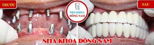 Trồng Implant 2 hàm