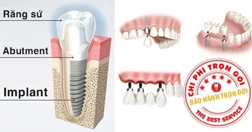 chi phí trồng răng implant bao nhiêu