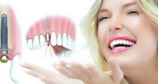 địa chỉ trồng răng implant ở đâu uy tín nhất tphcm