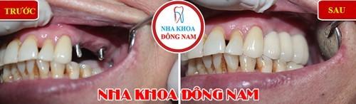 Trồng 2 trụ Implant phục hồi 3 răng sứ