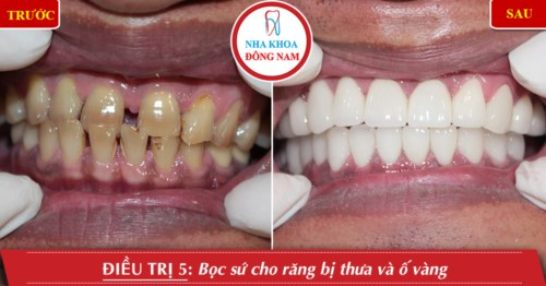 Nha khoa nào trồng răng sứ tốt nhất TPHCM?