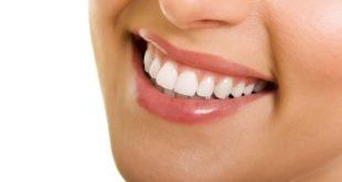 trồng răng sứ ở đâu tốt