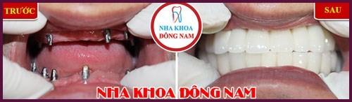 trồng răng implant hai hàm