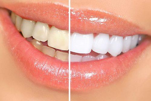 Cách làm sạch mảng bám đen trên răng-1